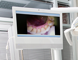 Intraoral photos on computer screen