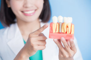 woman using dental implant illustration to educate