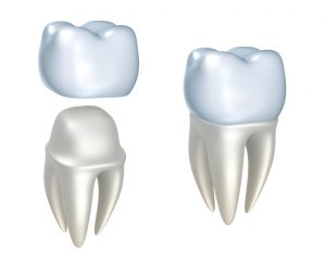 Your dentist serving Chehalis uses CEREC technology for same-day crowns.