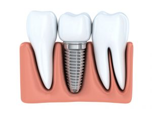 If you're missing one or more teeth, dental implants in Castle Rock offer superior replacement. Read details from implant expert, L Blaine Kennington DDS.