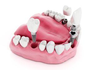 implants illustration